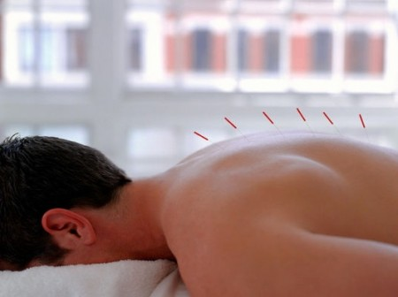 Oriental Natural Acupuncture Clinic